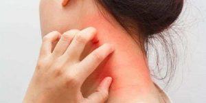efectos secundarios del ácido perclórico en la piel